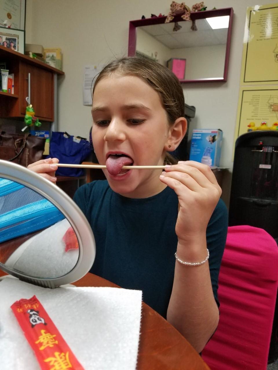 oral-facial-health-frenectomy