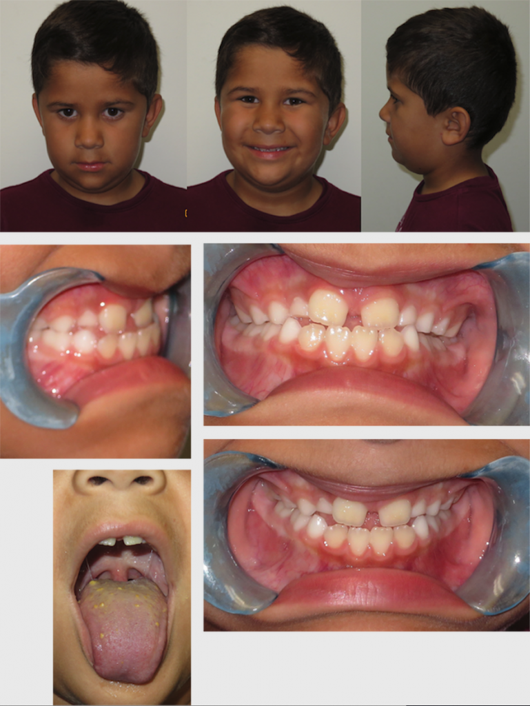 malocclusion-tongue-tied
